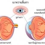 โรคเบาหวานขึ้นตา ?